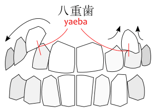 A diagram of yaeba 八重歯, illustrating how canine teeth become misaligned